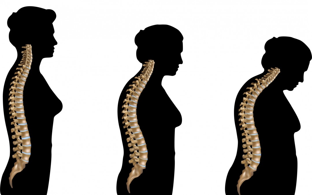 osteoporosis and radio ad Unformatted text preview: osteoporosis are low calcium intake, low bone mass, smoking, excessive alcohol use, and hysterectomy and post menopausalmany women past menopause also choose estrogen replacement therapy because of its proven usefulness in slowing the progression of, or preventing, osteoporosis.